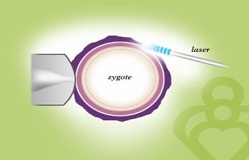 Procedure of Laser Assisted Hatching(LAH) at Apollo Fertility